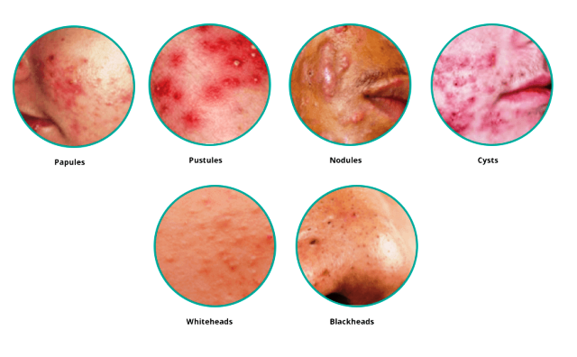 TYPE OF SKIN IN ACNE